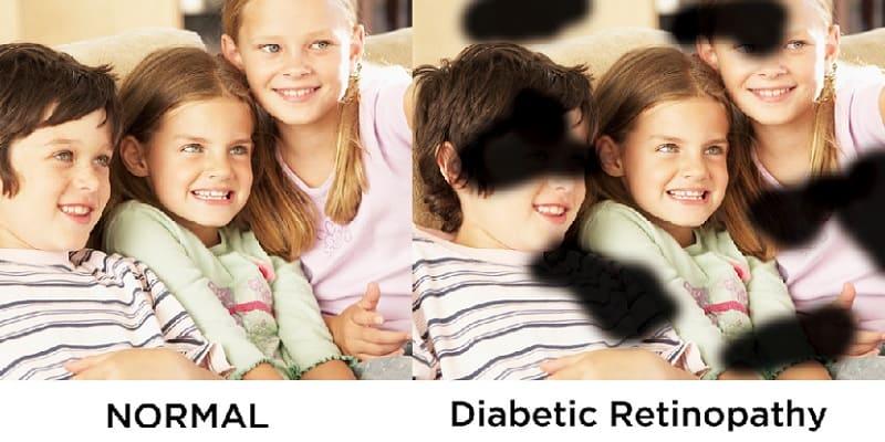 Penyebab Diabetes Retinopati