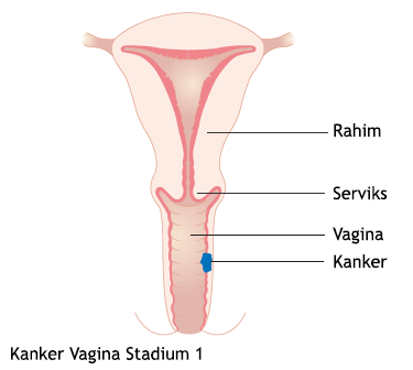 Kanker Vagina Stadium 1