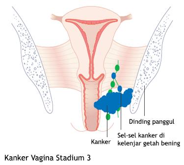 Kanker Vagina Stadium 3