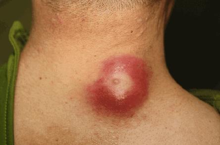 Gambar Kista Epidermoid yang Terinfeksi