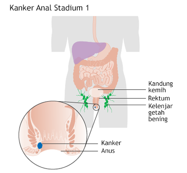 Ilustrasi Kanker Anal Stadium 1