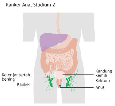 Ilustrasi Kanker Anal Stadium 2