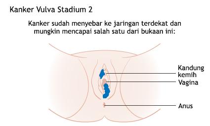 Ilustrasi Kanker Vulva Stadium 2