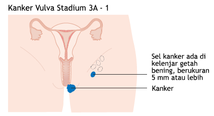 Ilustrasi Kanker Vulva Stadium 3A - 1
