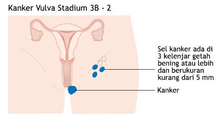 Ilustrasi Kanker Vulva Stadium 3B - 2