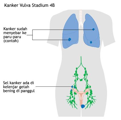 Ilustrasi Kanker Vulva Stadium 4B