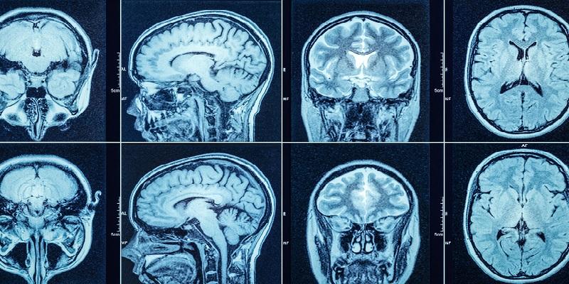 MRI migrain